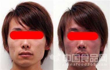 网传喝酒脸红人群更易患食道癌 说法有误